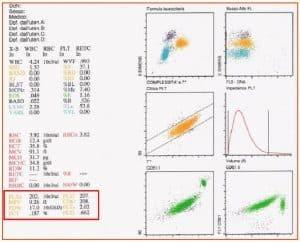 Figura 11. La tecnologia Abbott (CELL DYN Sapphire) è in grado di fornire il conteggio delle piastrine utilizzando tre differenti canali: ottico (PLTo), impedenziometrico (PLTi) e citofluorimetrico, utilizzando l'anticorpo monoclonale CD61 (CD61).