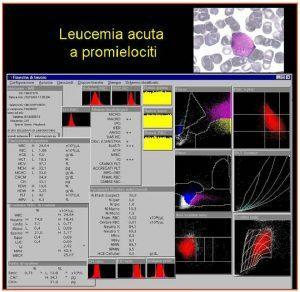 Figura 13. Referto ADVIA2120 di sangue periferico di un paziente con leucemia acuta a promielociti: nella zona degli allarmi (allarmi morfologici) compaiono le segnalazioni +++ per blasti e per granulociti immaturi. Il conteggio strumentale dei blasti è di 30.9%, valore confermato alla revisione al microscopio.