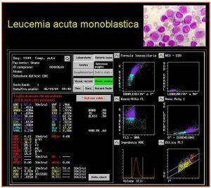 Figura 14. Referto CELL DYN 4000 di sangue periferico di un paziente con leucemia acuta monoblastica: sono chiaramente evidenti le segnalazioni per presenza di blasti e di granulociti immaturi (IG).