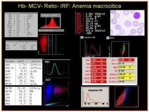 Figura 3. Quattro differenti referti strumentali del sangue periferico di pazienti con grave anemia macrocitica/megaloblastica.