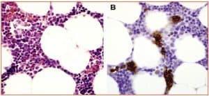 Zini_piattaforme_di-diagnosi_in ematologia_Figura_127