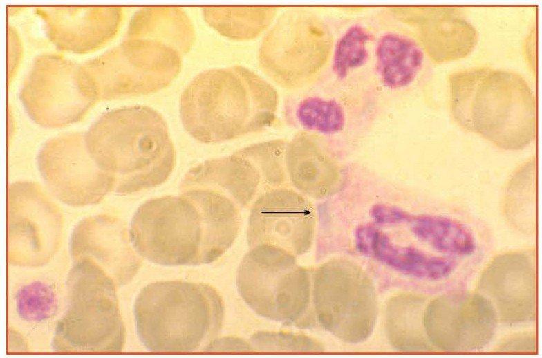 Zini_piattaforme_di-diagnosi_in ematologia_Figura_19