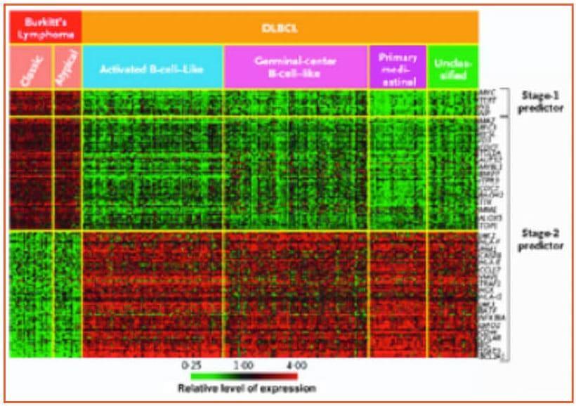 Foà_LEUCEMIA_ACUTA_LINFOIDE_a cellule_B_mature_Figura_2