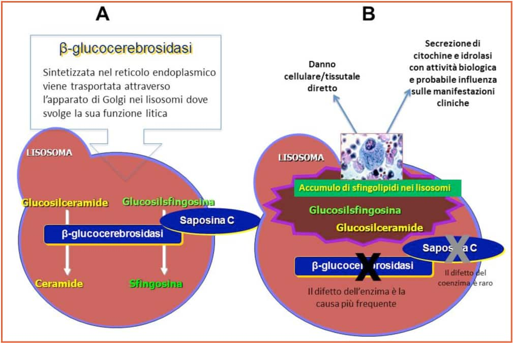 GIONA_Malattie_Metaboliche_congenite_Figura_1